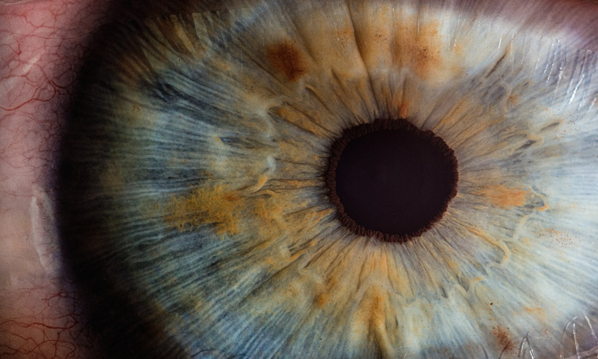 Dilated pupil secondary to serotonin syndrome