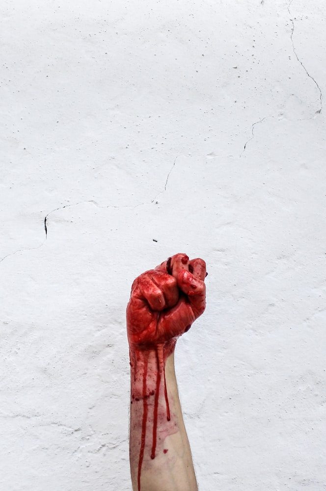 Person raising bloody hand with blood dripping on forearm